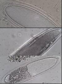 Pertusaria pertusa image