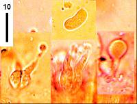 Exidiopsis grisea image