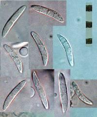 Ascocoryne sarcoides image