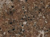 Arthonia lecideoides image